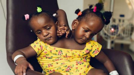 塞内加尔一父亲面临生死抉择 连体女儿只能救一个