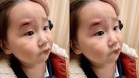 趙文卓女兒臉部受傷縫七針